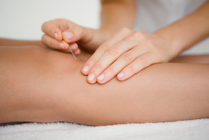 El dolor, i la seva evolució amb acupuntura