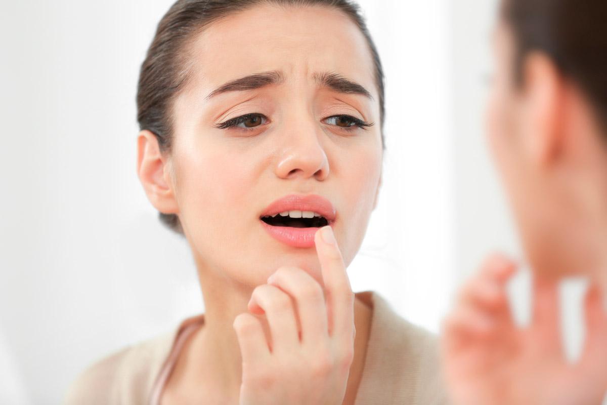 Tratar herpes labial lisina