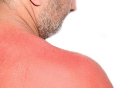 Guia natural per guarir accidents típics de l'estiu