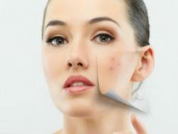 L'acne: no n'hi ha prou amb les cremes